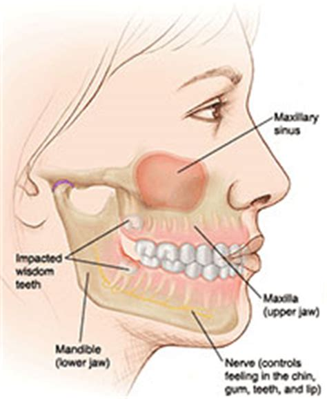 pain in cheek area after wisdom teeth removal picture 8
