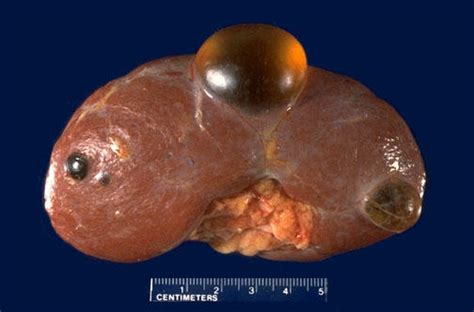 cystic acne liver picture 6