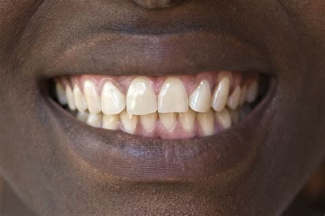 can natural teeth grow picture 14