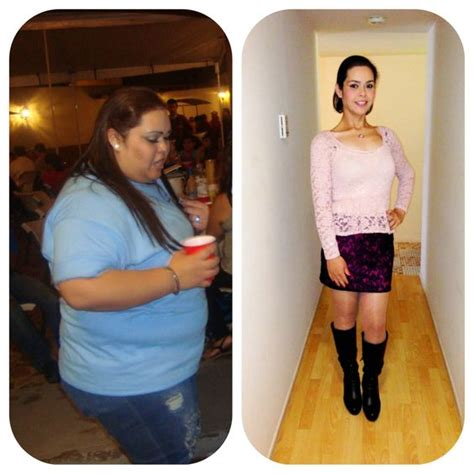 will gastric byp work if i'm weight loss picture 2