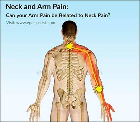 can h cause neck pain picture 6