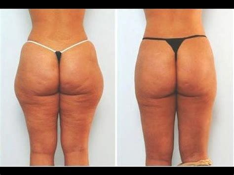 best anti cellulite cream picture 1