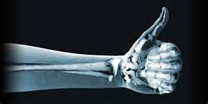 orthopedics picture 2