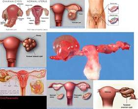 do probiotics help ovarian cyst picture 1