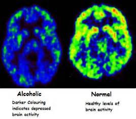 effects of impaired liver function upon the brain picture 7