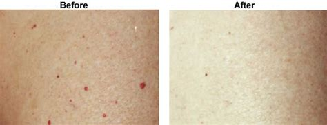 pin size blood spots on skin picture 5