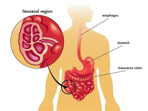 oxycodone liver damage picture 11