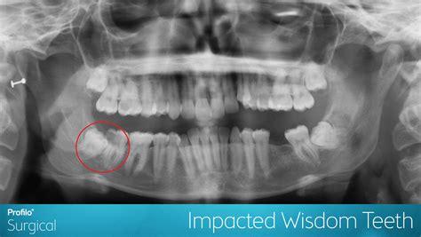 due wisdom teeth cause chronic bad breath picture 16