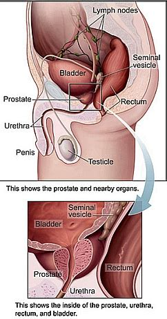 Laser prostate surgery picture 6