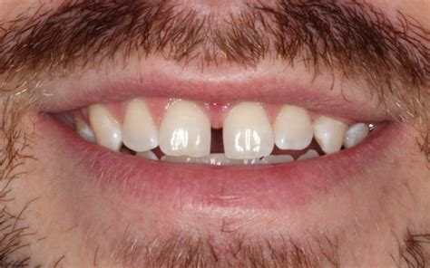 fix gap in teeth picture 5