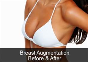 breast augmentation photos picture 3