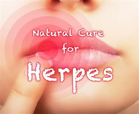 cure for herpes picture 13