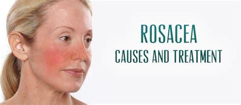 renewal rosacea relief picture 11