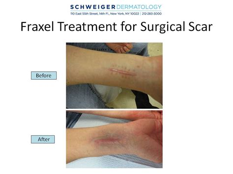 fraxel dual laser therapy acne scar removal medical picture 2
