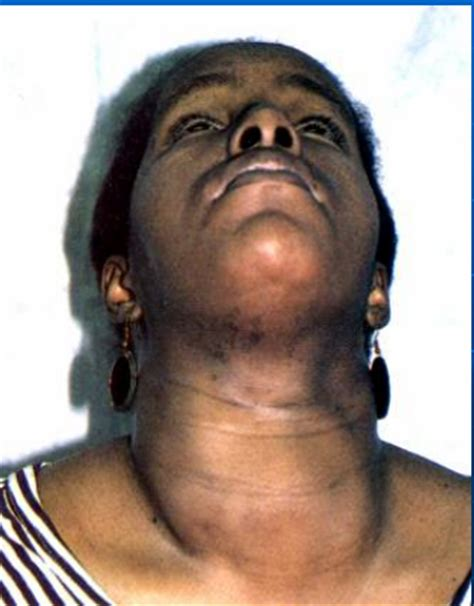 diseases for thyroid in cava in fiji picture 16