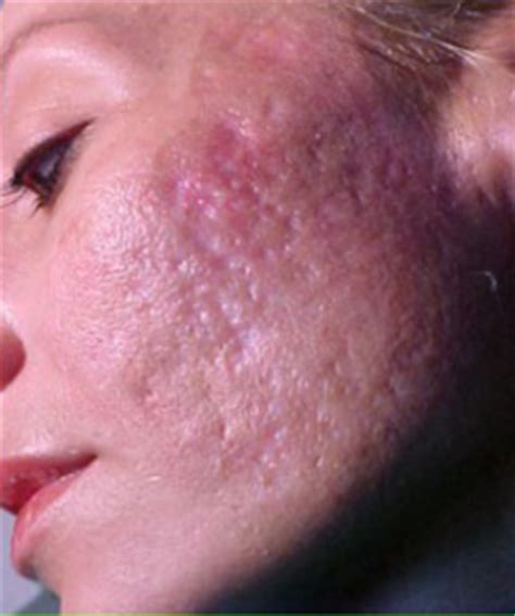 acne scarring on face what to do picture 4