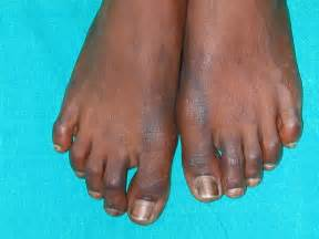 medical conditions darkening of skin picture 2