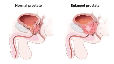 Syptoms of a enlarged prostate picture 18