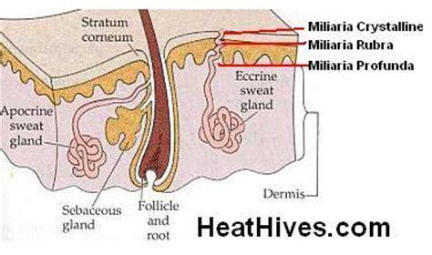 urticaria vegan diet picture 14