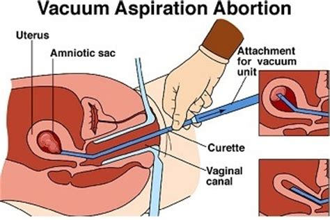 herbal abortion for 8 weeks pregnancy picture 8