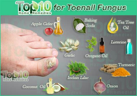 nail fungus home remedies picture 5