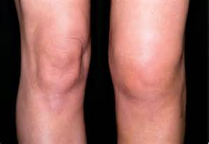 swollen knee joint picture 7