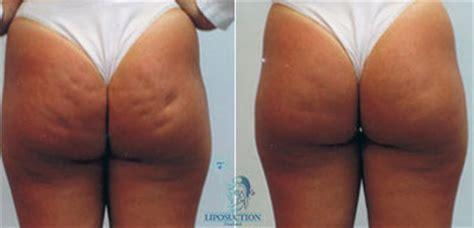 Revitol cellulite cream picture 7