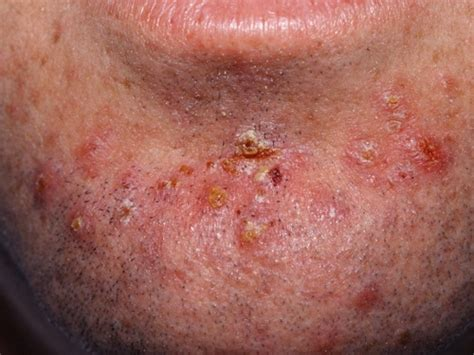 foliculitis bacterial picture 7