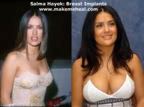 breast actives before and after picture 9