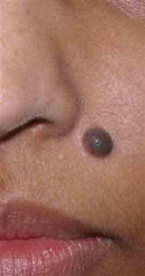 black wart like moles picture 10