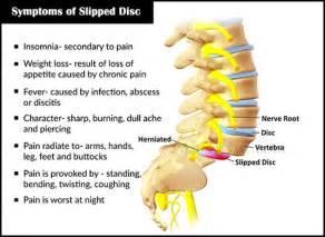 back ache leg pain picture 2