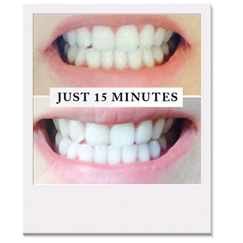 whiten teeth with egg whites picture 18