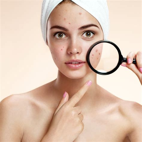can a strenous workout harm acne picture 2