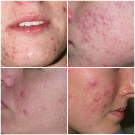 get rid of hives picture 6