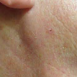basal skin cancer symptoms picture 11