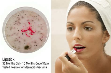 discovery of bacterial meningitis picture 7