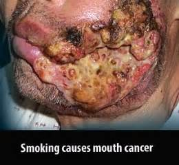 chewing tobacco causes back pain picture 13