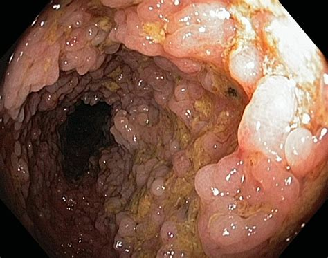 intestinal scarring from colitis picture 2