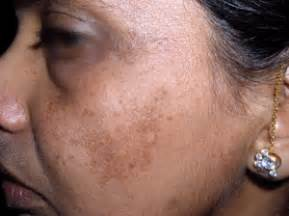 Upper lip melasma picture 7