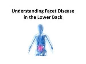 diagnosing facet joint dysfunction picture 1