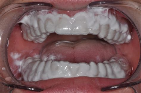 fluoride treatment for teeth picture 14