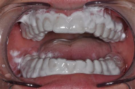 calcium teeth white picture 1