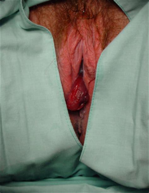 colon cancer out come picture 11