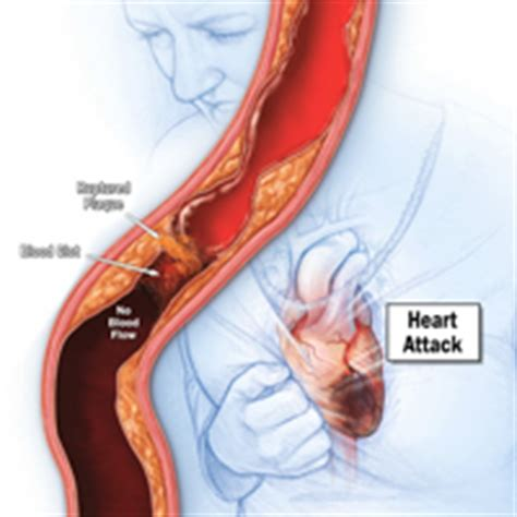 indigestion and heart pain picture 9