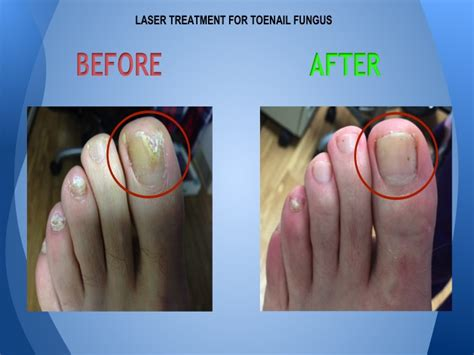 laser treatment nail fungus northern va. picture 3