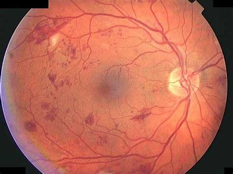 diabetic eye radio spots picture 2