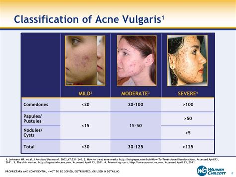 acne cysts picture 5