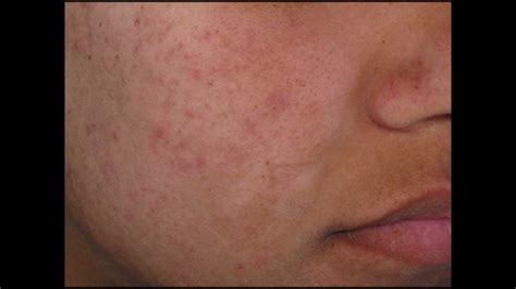 side effects of acne cream medisalic picture 5