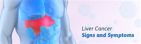 what are the symptoms of liver cancer picture 14