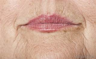 Lip wrinkles picture 1
